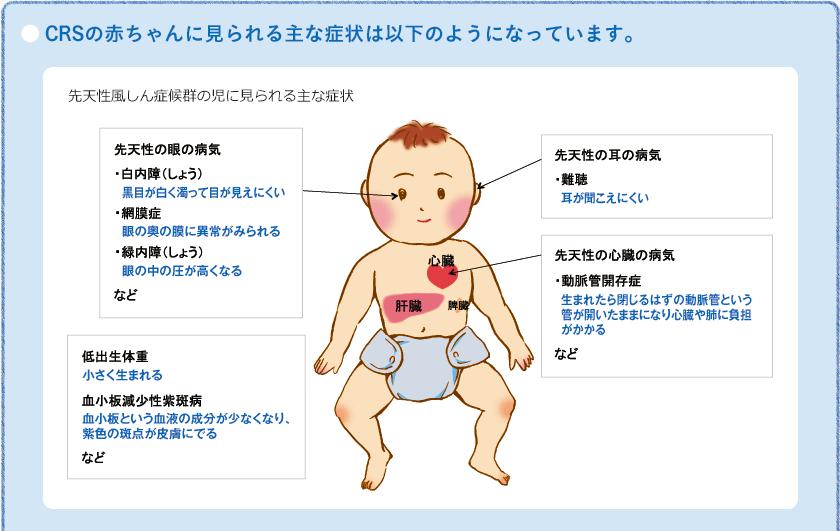 先天性風疹症候群(CRS)